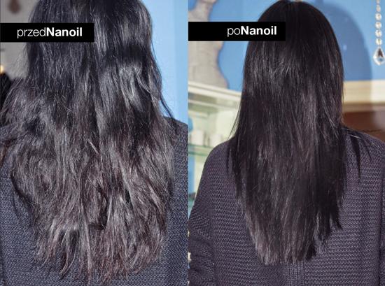 przed i po olejku Nanoil